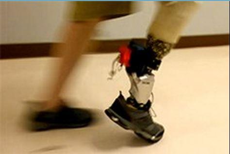 NAU ankle