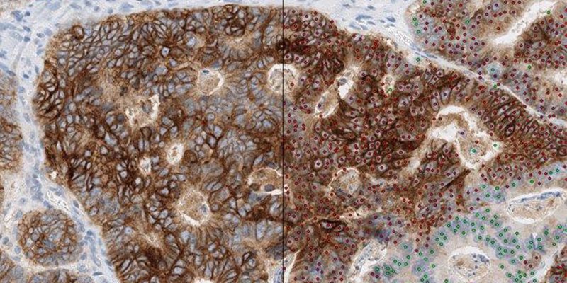 The main image is of a colorectal cancer. To the left of the black line is how the image would appear down a microscope. The image to the right of the line is how it would look once the artificial intelligence algorithm has been used to label the cancer cells with dots. The red dots highlight the cells which contain the EREG protein and the green dots are EREG negative. Image copyright Roche Diagnostics.